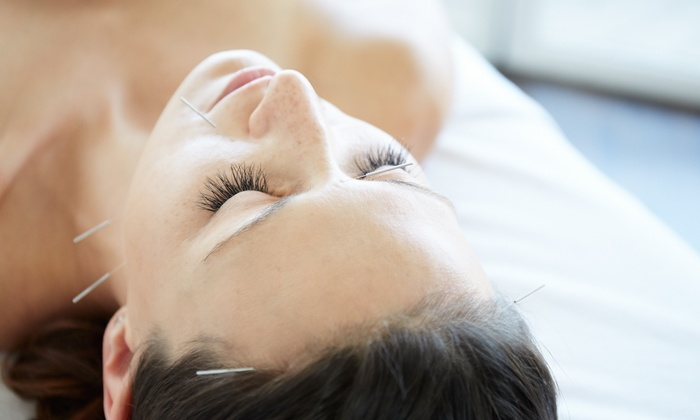 Acupuncture Is the Natural Healer