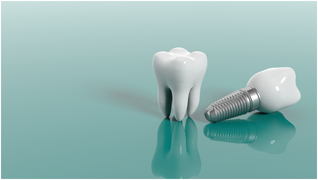 Dental Implants for the Whole Mouth
