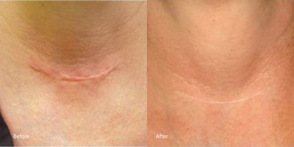 Reduce Scar Redness Natural Remedies