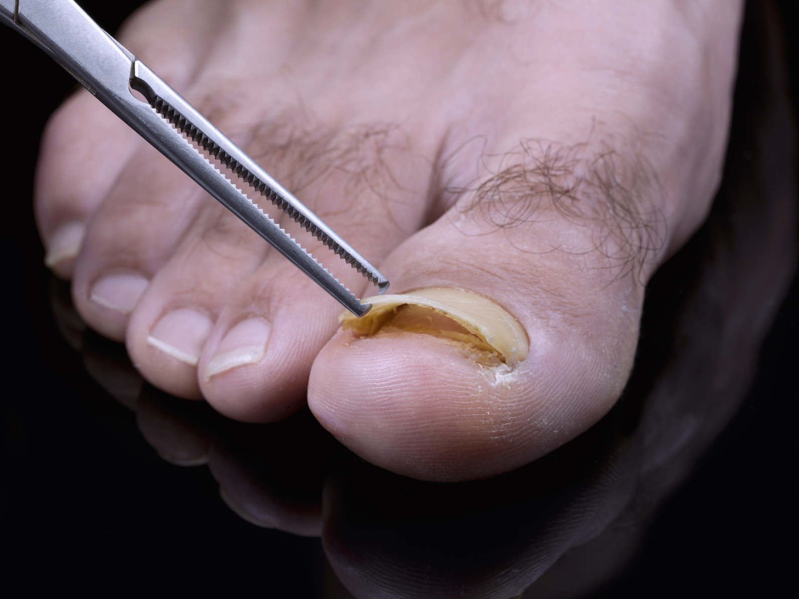 Causes of Nail Fungus and treatment | Elvislaskin- blog to be fit ...